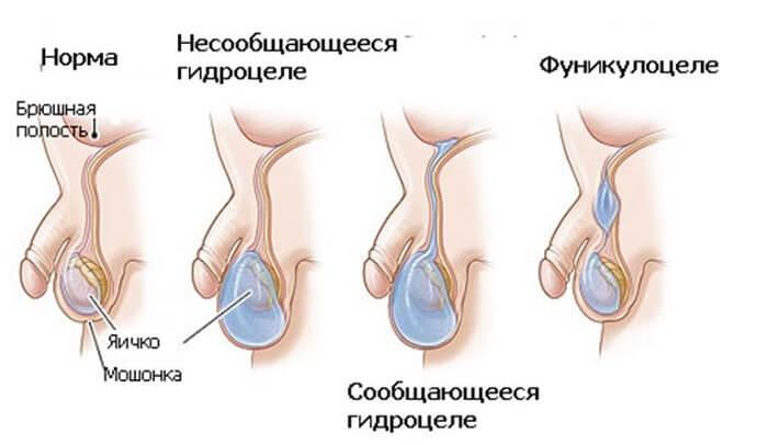 гидроцеле и увеличение яиц у мужчины