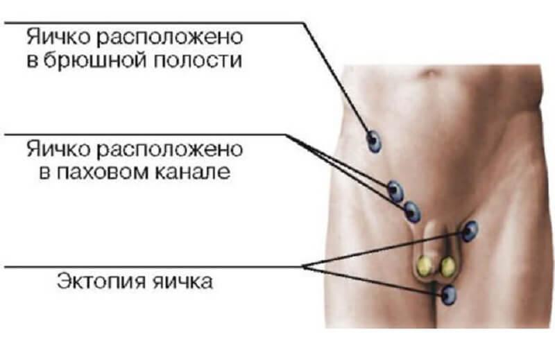 виды критпорхизма у мужчин
