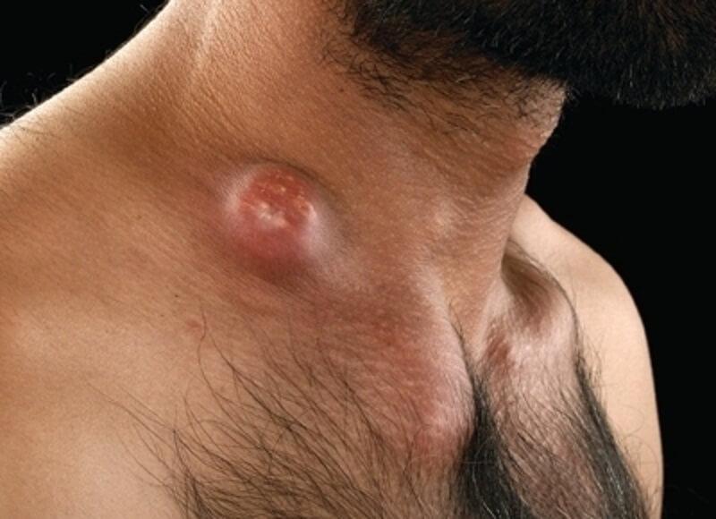 шейный лимфоденит это проявление оппортунистической инфекции в результате ВИЧ