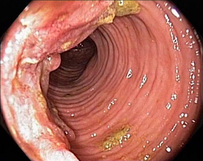 криптит кишечника и его симптомы