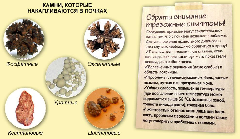 Симптомы и виды камней в почках