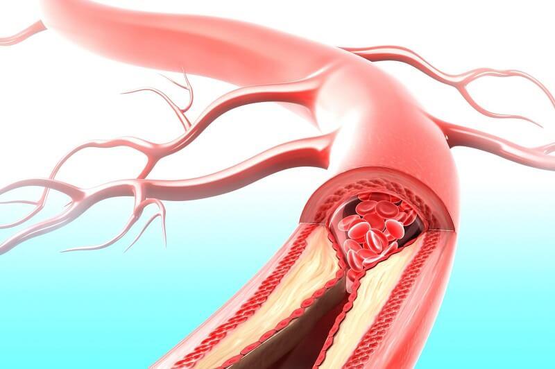 механизм развития почечной гипертензии
