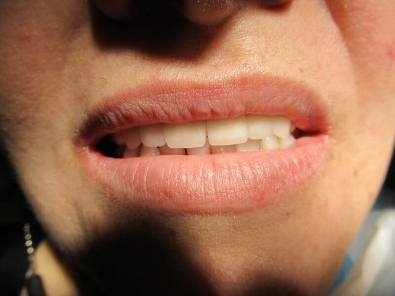 Причины металлического привкуса во рту у женщи и мужчин