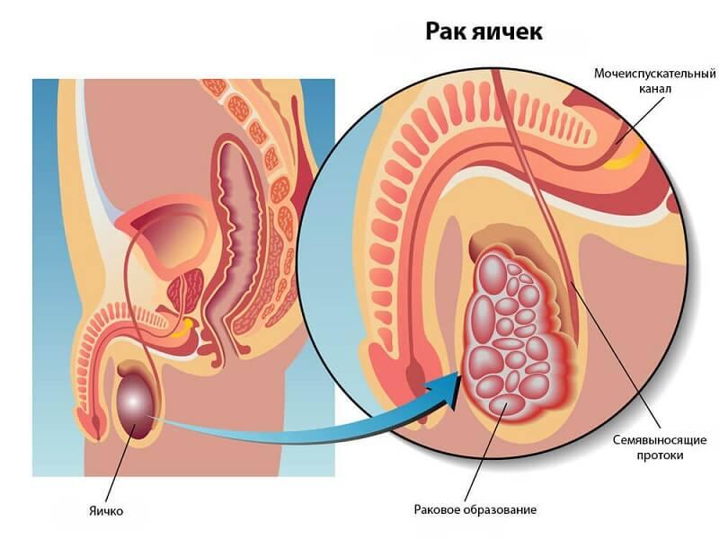 схема рака яичка