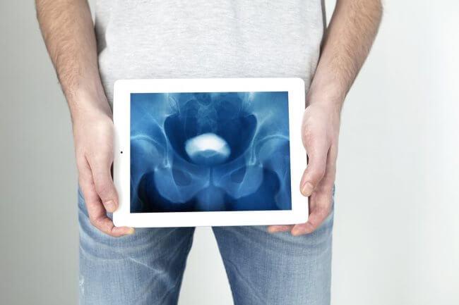 Уретрит у мужчин: симптомы, лечение